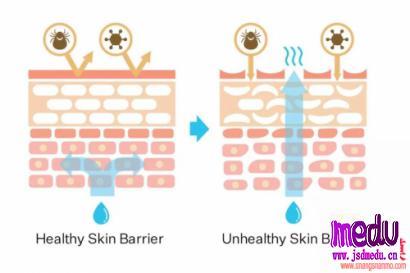 为什么要保湿,皮肤水分为什么会流失,该如何保湿?