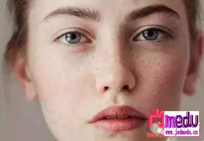 女人长黄褐斑是什么原因?有效消除黄褐斑的方法