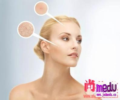 夏天脸痒是怎么回事?皮肤干燥的原因及护理方法