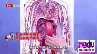 动脉粥样硬化让血管变脆、变薄,可能引发动脉瘤!