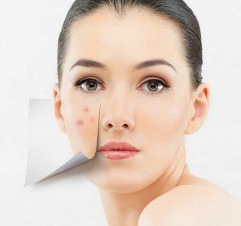 左脸颊长痘是什么原因?