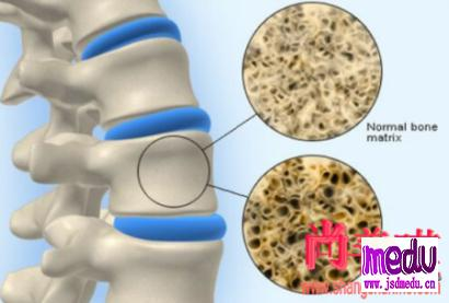 狄诺塞麦注射依从性不佳会影响骨密度增加