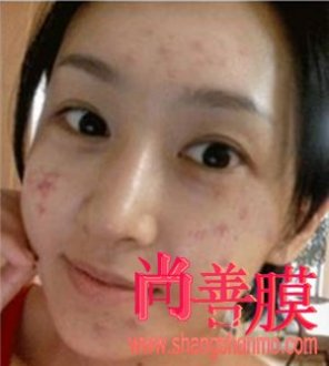 暗疮是痘痘吗?如何防止皮肤长痘痘?