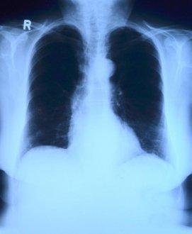 糖尿病患者如何预防新冠病毒肺炎新型冠状病毒?