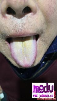 武汉肺炎当中湿热咳嗽如何治疗?