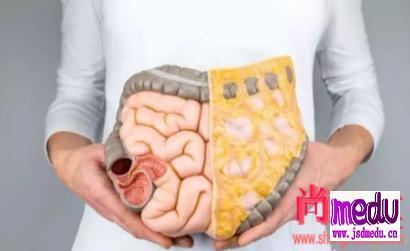 如何预防肠癌,需要改掉那些坏习惯?