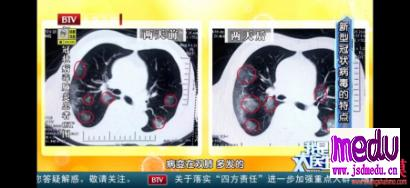 如何佩戴口罩避免飞沫传播新型冠状病毒?如何洗手、消毒预防武汉肺炎?