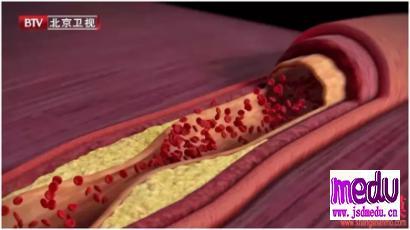 家族性高胆固醇血症,年轻时更易有血管狭窄!
