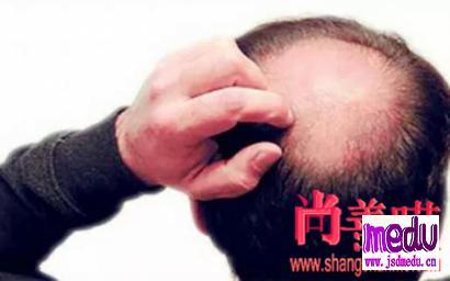 养发养血,治秃治燥中医治疗经方