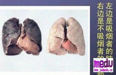 新冠肺炎得病的吸烟的多,还是不吸烟的多?