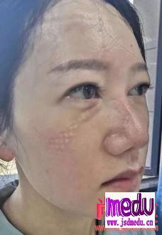 抗击新冠肺炎疫情期间的皮肤防护要点