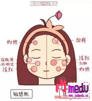 如何分辨皮肤是敏感还是过敏?