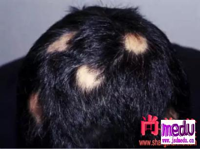 掉头发,就是掉精血,补精血治疗斑秃的中医方子!