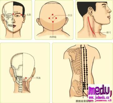 神经衰弱,按摩哪些穴位可以缓解治疗?
