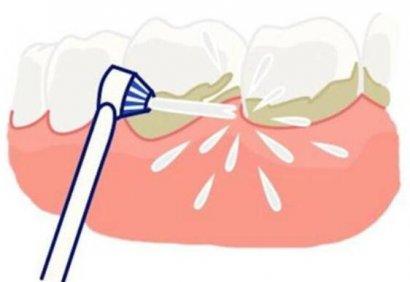 洗牙是否伤害牙齿,导致牙缝增大?