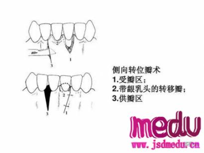 牙龈退缩就补牙龈