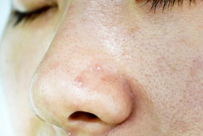 鼻子上长囊肿型痘痘怎么办?